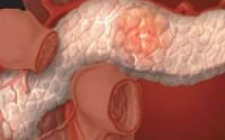 Что делать при увеличении поджелудочной железы?