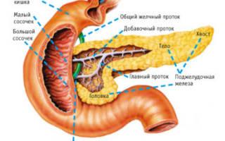 Последствия операции по удалению поджелудочной железы и жизнь после