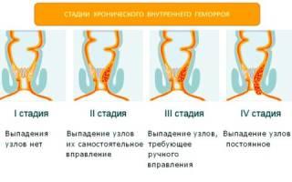 Проверенные лекарства для лечения геморроя у мужчин и женщин