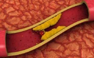 Цели проведения анализа крови на холестерин