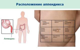 Признаки заболевания и в каком боку расположен в организме человека аппендицит?