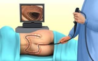 Какая есть альтернатива колоноскопии кишечника и что показывает процедура?