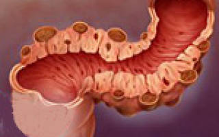 Причины, симптомы и лечение дивертикулеза сигмовидной кишки