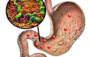 Что такое хронический дуоденит желудка и двенадцатиперстной кишки