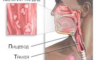 Как определить кандидозный эзофагит и методы лечения заболевания?