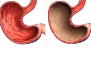 Что из себя представляет гиперплазия слизистой желудка?