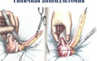 Что из себя представляет процедура аппендэктомии?