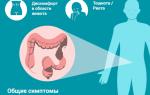 Как определить характерные признаки рака кишечника у мужчин и женщин