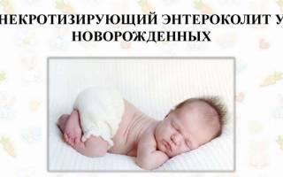 Развитие и симптомы некротизирующего энтероколита у детей