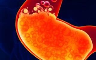 Причины, симптомы, лечение повышенной кислотности желудка