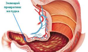Как проявляется недостаточность привратника желудка?
