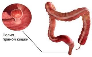 Симптомы появления полипов в кишечнике и лечение заболевания народными средствами