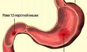 Проявление первых признаков и лечение язвы желудка