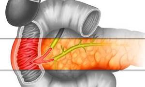 Что такое Фатеров сосочек, и каким заболеваниям он подвержен?