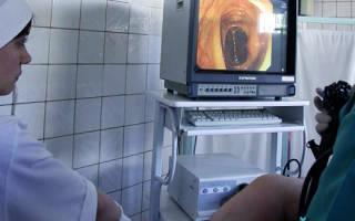 Диагностика и лечение геморроя