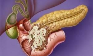 Как лечить рак поджелудочной железы народными средствами?