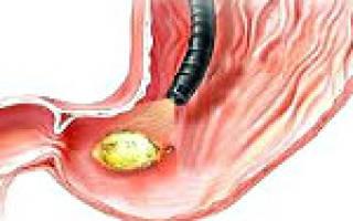 Симптомы перфоративной язвы желудка и 12 перстной кишки