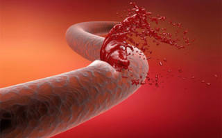 Определение и классификация желудочно-кишечных кровотечений по МКБ-10