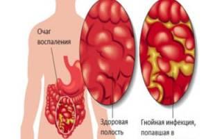 Что такое перитонит брюшной полости и методы лечения недуга?