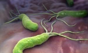Хеликобактер: особенности лечения народными средствами