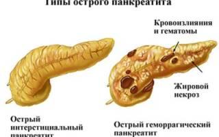 Определение и классификация острого панкреатита по МКБ-10