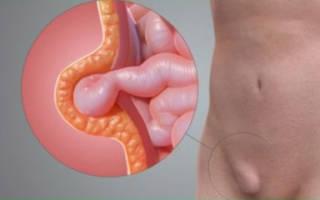 Какие симптомы наблюдаются при грыже кишечника у женщин?