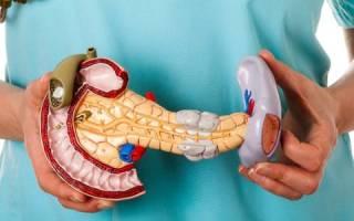 Что такое хронический рецидивирующий панкреатит?