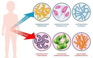 Причины и симптомы дисбактериоза у грудничка