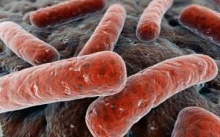 Как проявляется и лечится туберкулез кишечника?
