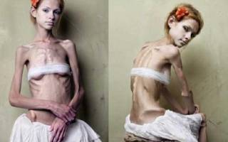 Симптомы появления анорексии и стадии развития заболевания