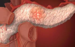 Какой должна быть диета при хроническом панкреатите у взрослых?