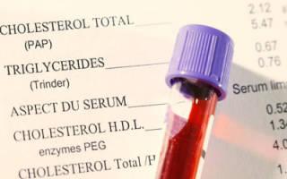 Общие принципы расшифровки показателей анализа крови на холестерин