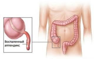 Что такое инфильтрат брюшной полости?