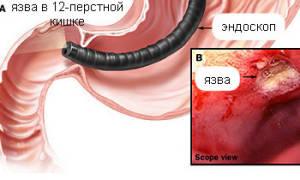 Почему происходит рубцовая деформация луковицы 12-перстной кишки?