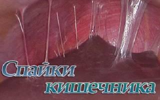 Симптомы и послеоперационное лечение спаек кишечника