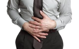 Симптомы и подходы к лечению язвы двенадцатиперстной кишки