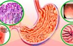 Симптомы и лечение очагового поверхностного гастрита