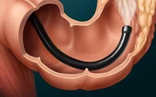 Показания к назначению и больно ли делать колоноскопию прямой кишки?
