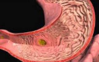 Симптомы и лечение хронического, поверхностного, эрозивного гастродуоденита