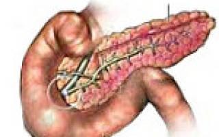 Причины диагностика симптомы и лечение билиарного панкреатита