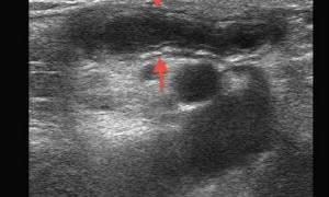 Диагностика аппендицита с помощью УЗИ