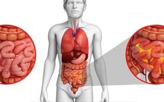 Симптомы и лечение гнойного перитонита кишечника