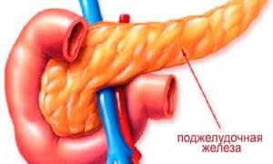 Что означают диффузные изменения поджелудочной железы, каковы их симптомы и лечение