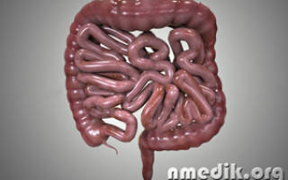 Симптомы и методы лечения заболеваний кишечника