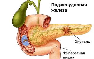 Как возникает и развивается инсулинома поджелудочной железы?