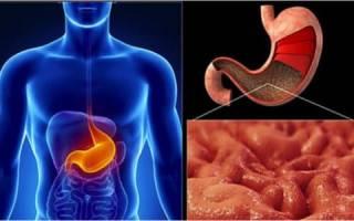 Причины появления и признаки нулевой кислотности желудка