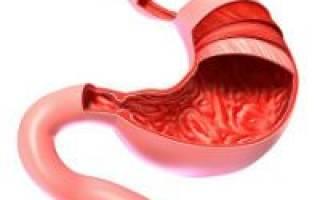 Симптомы и лечение диффузного гастрита