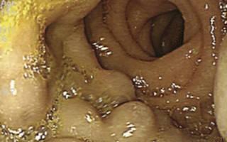 Что такое паренхиматозный панкреатит?