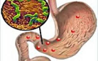 Симптомы гастродуоденита и его лечение