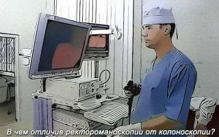 Отличия и сравнение ректоскопии и колоноскопии